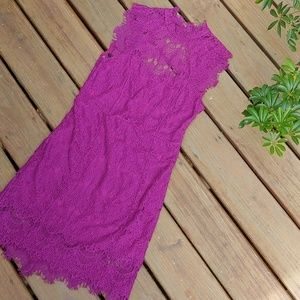 Free People Lace Backless Dress NEW